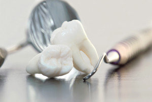 Lost a Tooth by Accident? A Dentist in Concord, CA Can Replace It